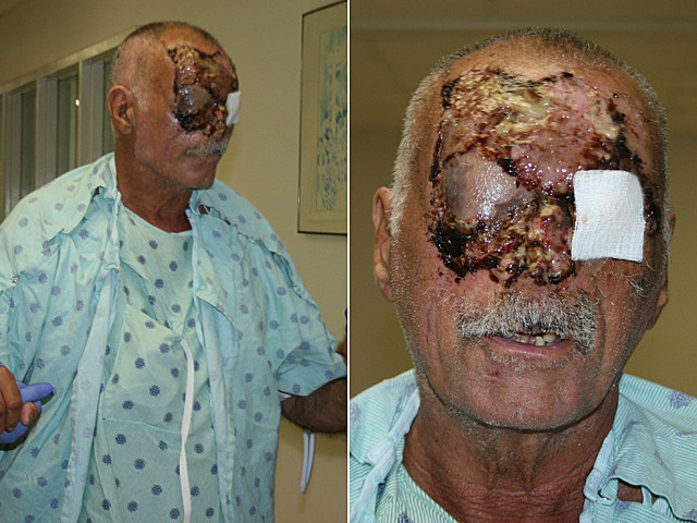 graphic pictures of homeless man's face - ronald-poppo